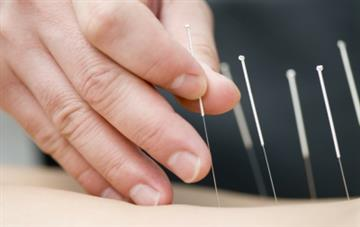 Acupuncture for palliative cancer pain management