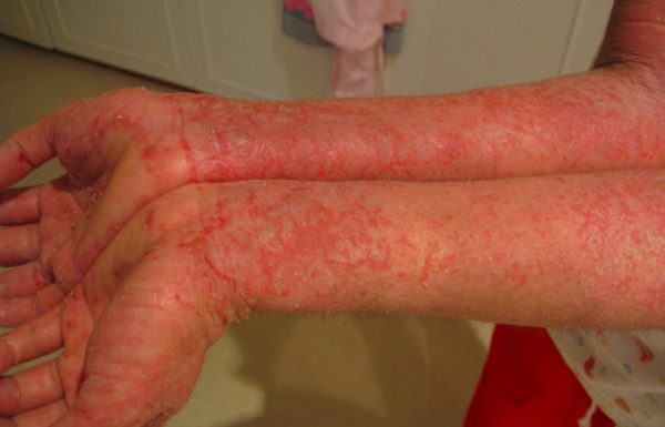 Atopic dermatitis (eczema) Treatments and drugs - Mayo Clinic